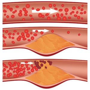 cholestérol artère massage entreprise amatonic